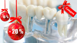 установка зубных имплантов со скидкой